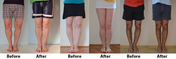 Legs Before After