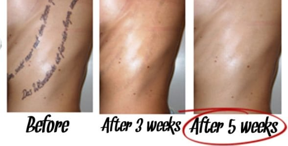 The Laserless Tattoo Removal Guide Discount
