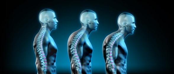 Forward Head Posture Fix Discount