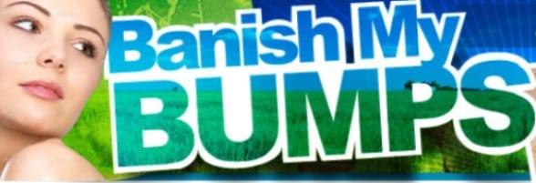 Banish My Bumps Cover